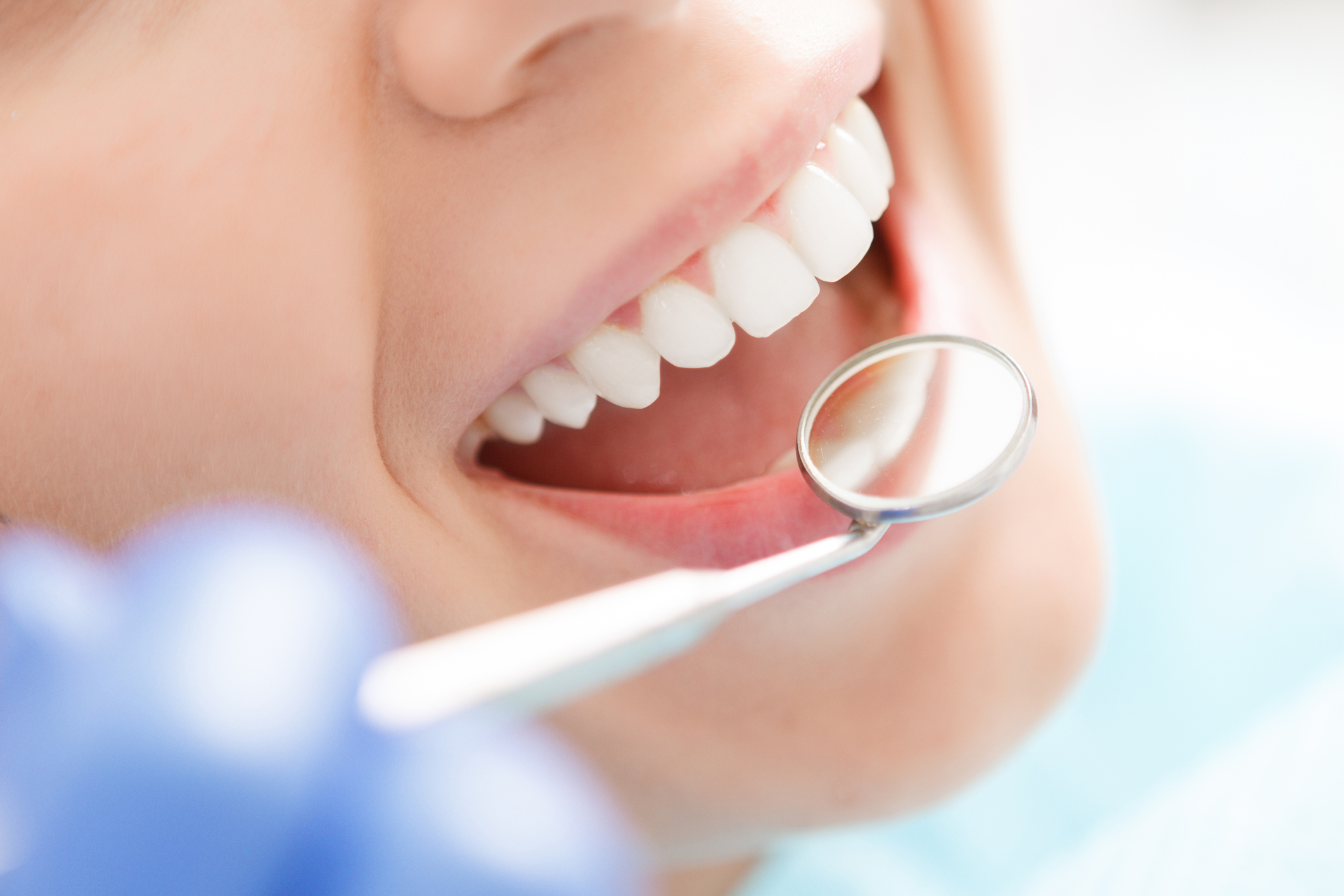 Dentista a Palestrina: Prezzi, Professionisti e consigli…